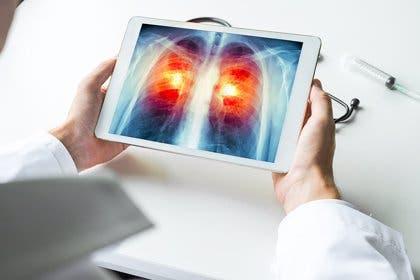Iniciativa busca reducir 20% mortalidad por cáncer de pulmón para 2025