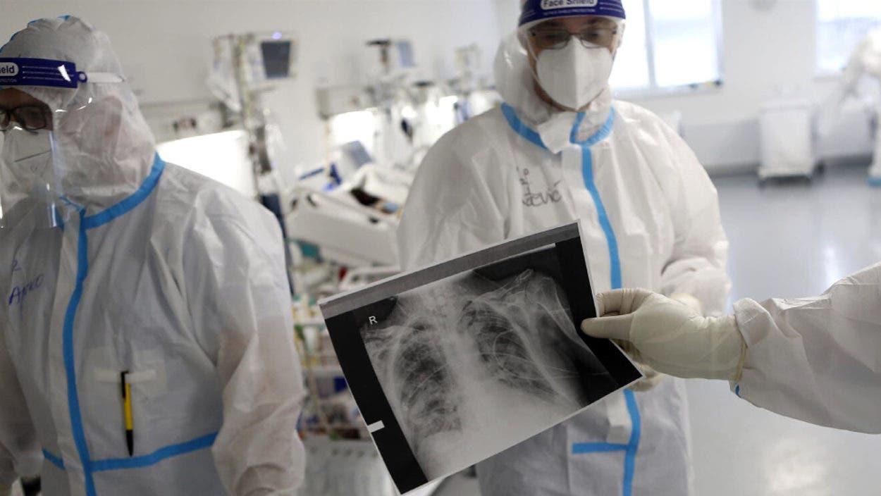 Virus en pulmones principal causa muerte por covid