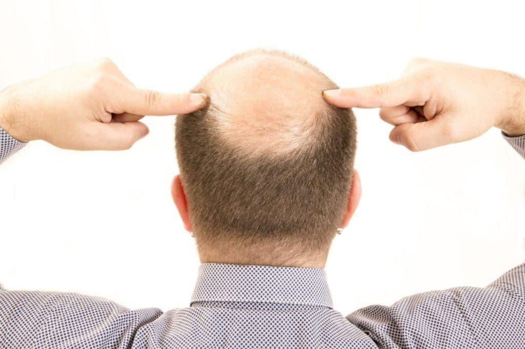 Mientras un grupo de personas deciden que la calvicie siga su curso, otros luchan, y se lamentan por haber perdido su cabellera, pero no deberían sentirte mal por eso, al contrario, esto tiene sus ventajas,  pues aunque no lo crean, ser calvo tiene múltiples beneficios