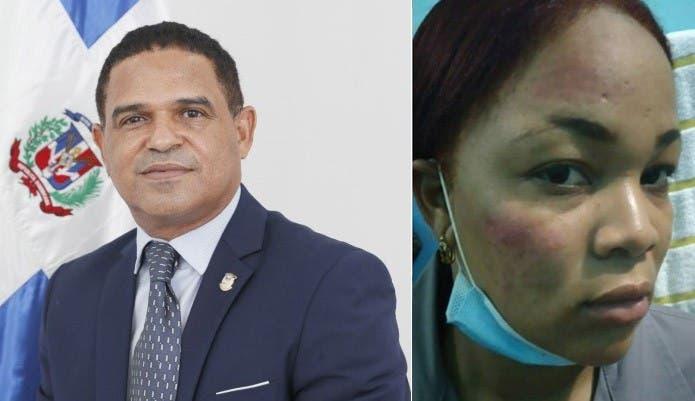 SCJ designa jueza para conocer caso de diputado agredió una policía